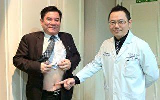 单一伤口腹腔镜手术  微创无痕