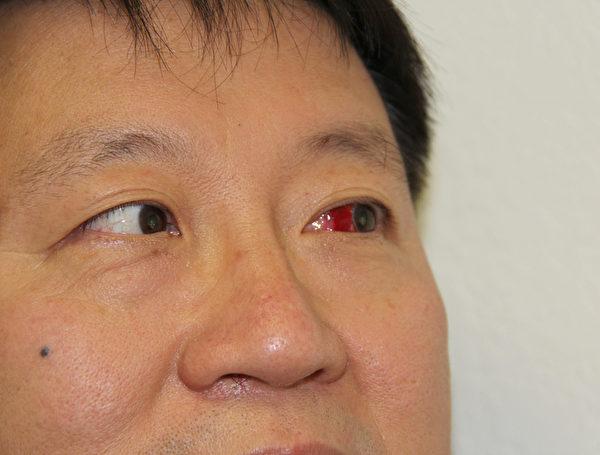 本次袭击事件中被中共帮凶打伤的在硅谷从事高科技事业的电子工程师徐震,左眼严重充血,眼镜架至今没有找到。(大纪元图片)