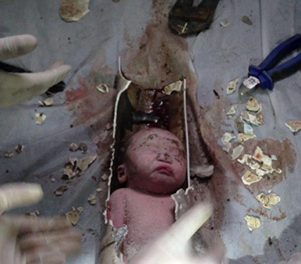 5月25日,浙江浦江一居民樓的廁所內,隱約傳來了嬰兒的啼哭聲。一個還帶著胎盤的嬰兒,被牢牢卡在了廁所下水道裡。經過兩個多小時救援,嬰兒奇蹟生還。(AFP)