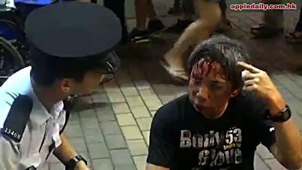 6日晚上,为法轮功仗义执言的陈先生遭暴徒殴打得头破血流的情况。(网络图片)