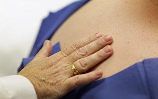 皮膚淋巴癌是「變色龍」 5種異狀別輕忽