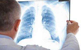 全球空气恶化  专家教你养出干净的肺