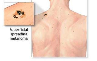 惡性「黑色素瘤」 10項不為人知的事情