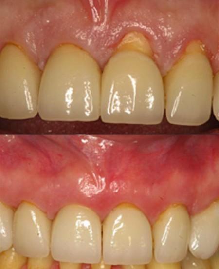 针孔牙龈增生术