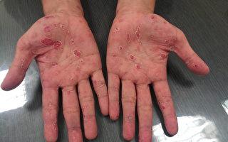 維州衛生官吁所有育齡女性接受梅毒檢測
