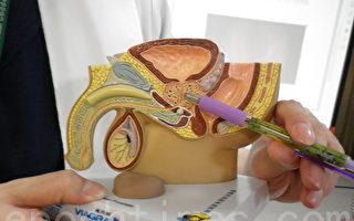 天冷易略频尿  50岁男性应注意摄护腺