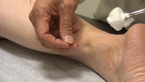 中醫針灸可達到深層的診療效果。(薛文/大紀元)