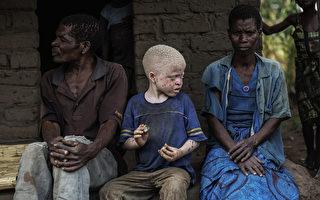 巫术作祟 非洲白化症患者如动物般遭猎杀