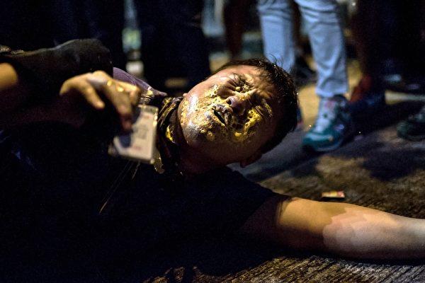 雨傘運動期間,有現場採訪記者佩戴記者證, 仍被警方的胡椒噴霧噴中受傷。(Alex Ogle/AFP/Getty Images)