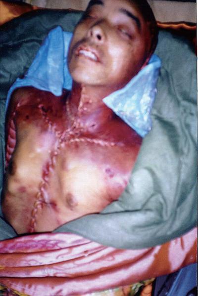 黑龙江省法轮功学员王斌在劳教所被警察残暴毒打致死,器官被摘。(明慧网)