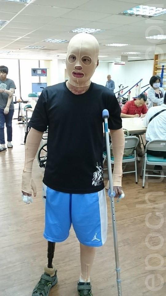 晏祥从坐在轮椅上,到现在可以用义肢走路。(方金媛/大纪元)