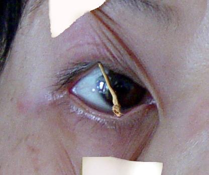 酷刑演示:用扫帚棒支起眼皮, 不让睡觉。(明慧网)