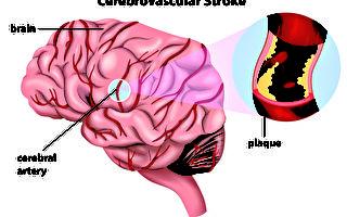 动脉硬化 急性症状要人命