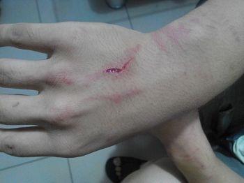 李宗澤被手銬銬出的傷痕(明慧網)