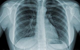 氣流受限是慢阻肺確診特徵