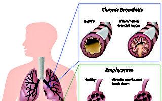 什麼是慢阻肺?