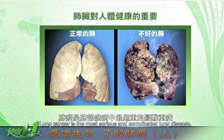 视频:肺癌的概述