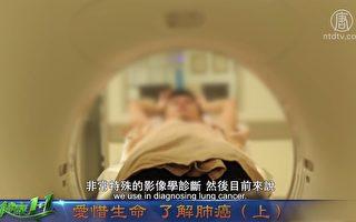 视频:肺癌的诊断
