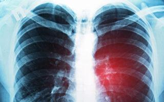 肺癌的影像學檢查