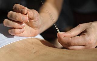 認識傳統中醫術——子午流注針灸法