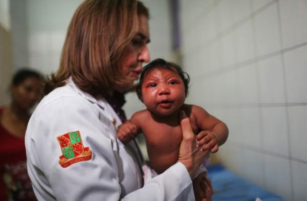 2016年1月26日,巴西累西腓奥斯瓦尔多克鲁斯医院儿童感染科,罗查博士(中)检查一名两个月小头畸形的婴儿。在过去的四个月中,巴西已有千例小头症婴儿,医学上怀疑蚊子传播的兹卡病毒可能导致孕妇产下畸形婴儿。(Mario Tama/Getty Images)