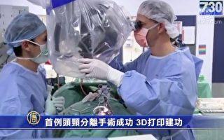 【天天健康】首例头颈分离手术成功 3D打印建功