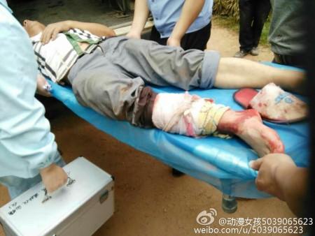 5月25日,江西赣州市南康区凤岗镇路塘村强拆人员与村民爆炸冲突,村民多人受伤。(网络图片)