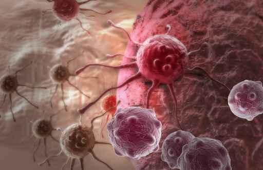少做一件事 美癌症死亡率25年下降26%