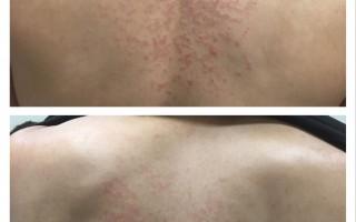 色素性痒疹误为湿疹  后背有如红色圆网