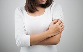 消腫止「癢」  醫師:避免發炎感染