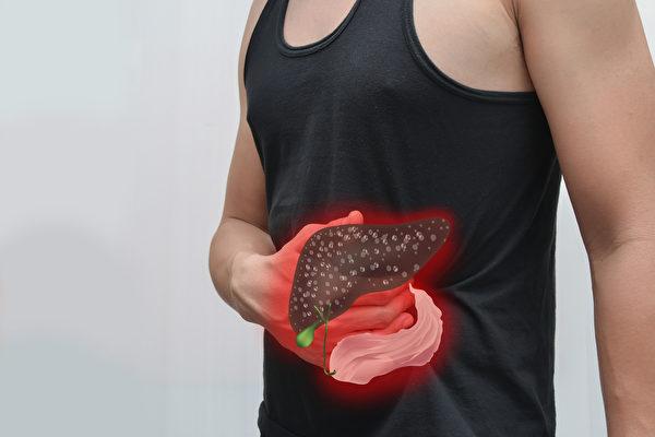 肝癌往往到晚期才會有症狀,肝癌症狀有哪些?如何檢查肝癌?(Shutterstock)