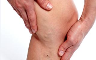 """腿突然发肿  """"下肢静脉栓塞""""的中医疗法"""