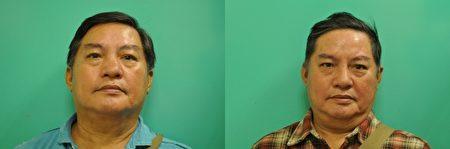 歪鼻矯正:(左)術前v.s.(右)術後,已矯正鼻部左偏的缺陷。(新竹馬偕醫院提供)