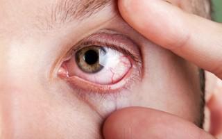 眼睛出現紅血絲 中醫怎麼治?