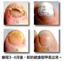 用激光治療灰指甲的前後變化。(Dr. Michael A. Stein提供)