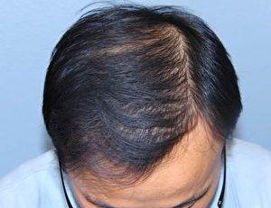 使用ARTAS手术后的头发。(Miguel Canales博士提供)