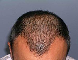 ARTAS手术前的头发。(Miguel Canales博士提供)