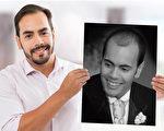 脱发患者开心地拿着以前的照片,形成强烈对比。(Miguel Canales博士提供)