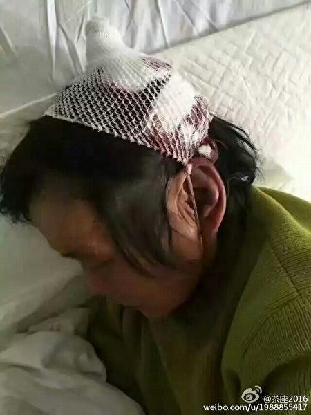 11月8日凌晨,江苏徐州市铜山区汉王镇马山村遭遇数百城管突袭暴力强拆,十余人被打成重伤住院。(网络图片)