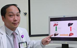 罹患脂肪肝  了解成因追踪治疗