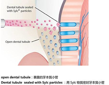 Sylc牙齒脫敏圖解。(硅谷陶園牙醫診所提供)