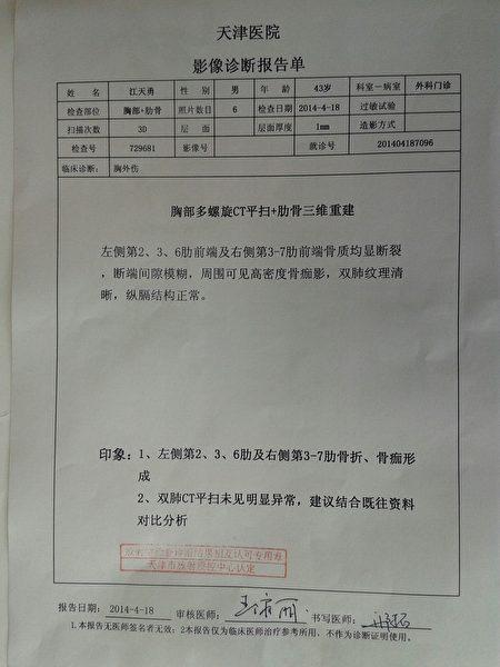 江天勇曾经被打断肋骨的医院证明。(金变玲提供)