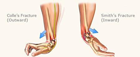 """图说:桡骨远端骨折很常见,跌落时以手掌着地造成""""科雷式骨折""""(Colle's fracture),较多见。以手背着地造成""""史密斯式骨折""""(Smith's fracture), 较少见。两种骨折类型不 同,治疗方式不同。(图片由黄思暖治疗师提供)"""