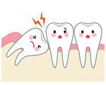 牙科咬合版矫治  不适用幼童