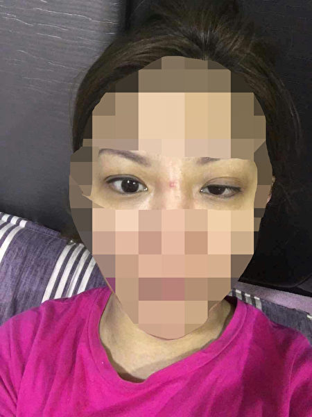 韩国非法微整形速成班上,在以学员为模特进行的美容针注射实习中,由于学员操作技术不当,常常会出现一些事故。图为在注射瘦脸针(肉毒素)时,出现一侧面部僵硬、眼皮下垂现象。(知情人提供)