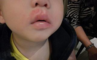 皮肤红肿抓痒 幼童易并发病毒感染