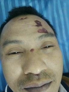 罗继标的脸上伤痕。(家属提供)