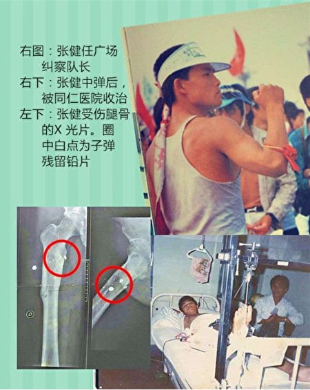 右图:张健任广场就差队长;右下:张健中弹后被同仁医院收治;左下:张健受伤腿骨的X光片。(张健提供,翻摄陈小雅《八九民运史》修订版)