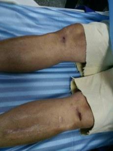 罗继标腿上的伤痕。(家属提供)