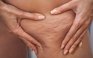 消除橘皮組織的3個可靠方法